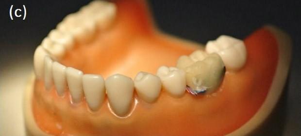 xtooth-implant01.jpg.pagespeed.ic.n60Qdmp5Ci